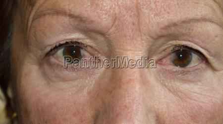 flap disease in both eyes